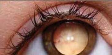 Il retinoblastoma