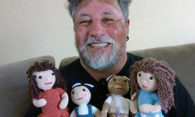 Le bambole con vitiligine di nonno Joao per spiegare la malattia ai bambini